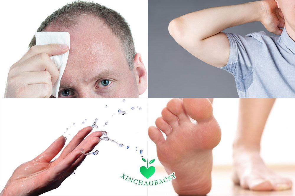 Đổ mồ hôi nhiều – Tất tần tật những điều cần biết về bệnh